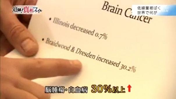 脳腫瘍と白血病3割増加