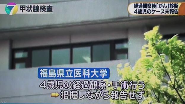 福島医大が福島原発事故当時4歳だった男児の甲状腺がん発病を未報告(2017年3月30日NHK夜7時のニュース)