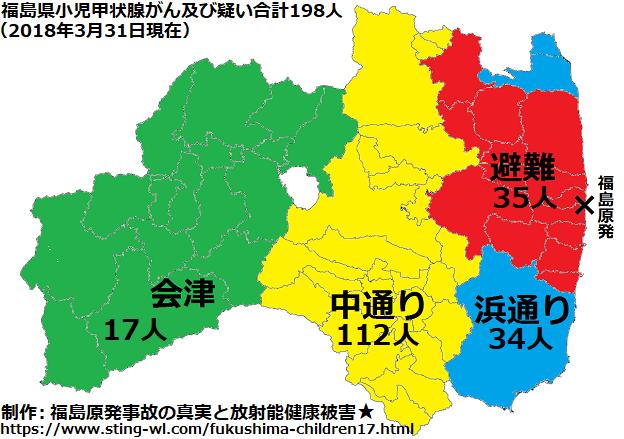 福島の甲状腺がんの198人の子供達を4地方別に分類